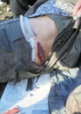 Argentine with typical glancing shrapnel wound