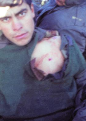 Argentine casualty with minor chest wound.